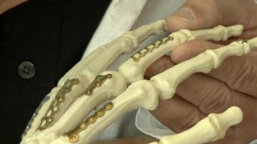 וידאו: כירורגית אמה וכף יד, מתי מנתחים?