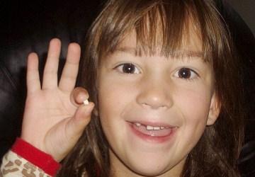 איך להסיר שיניים מתנדנדות אצל ילדים?