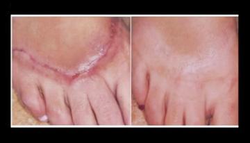 אלו טיפולי עור ניתן לבצע באמצעות לייזר?